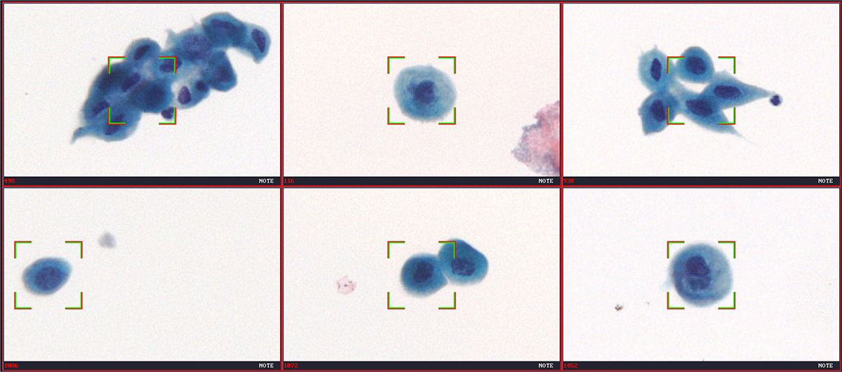 Automated detection of positive cells from urine cytology sample