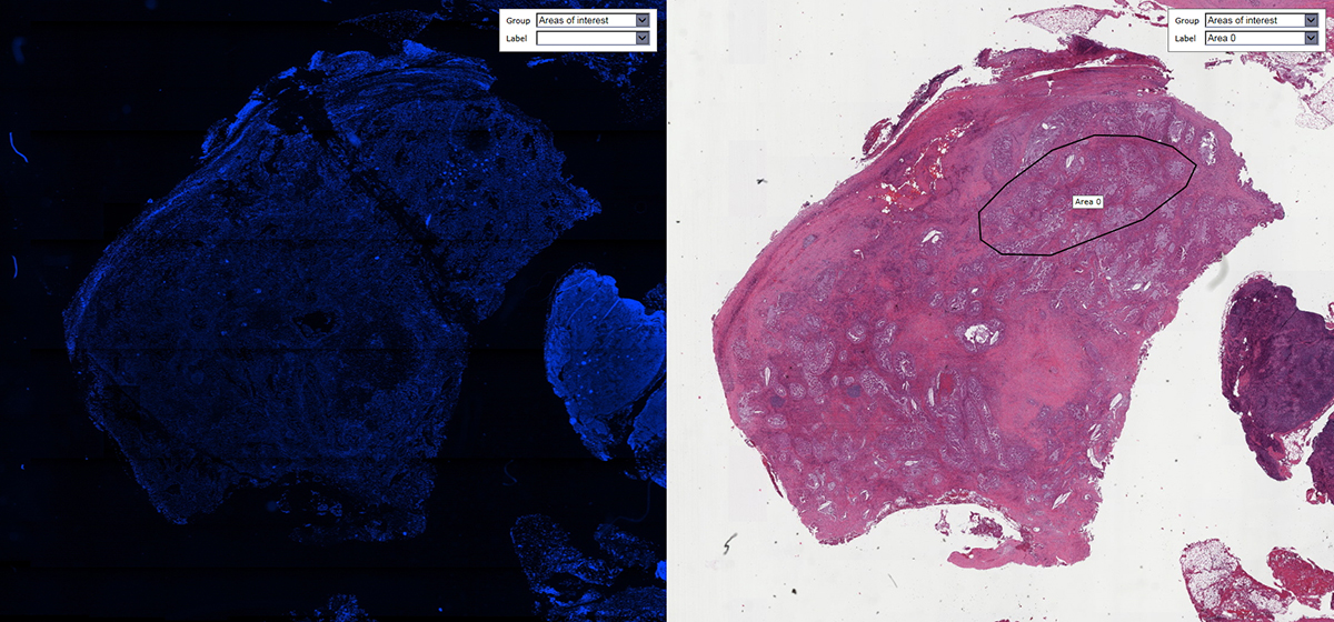 Matching of FISH slide with consecutively stained H&E section