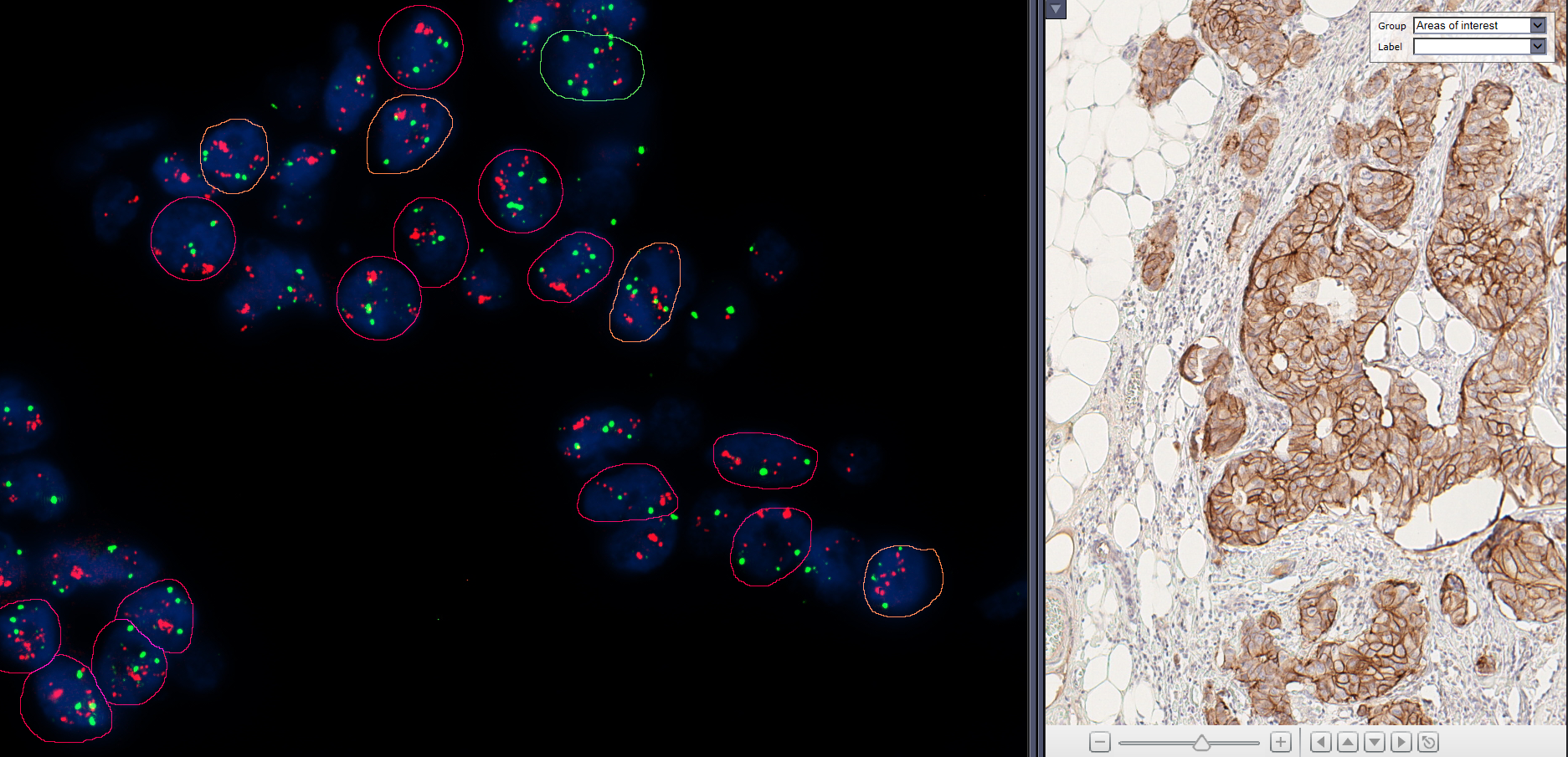 Breast Tissue hybridized with Her2/Neu FISH probe, matched to consecutively stained IHC section