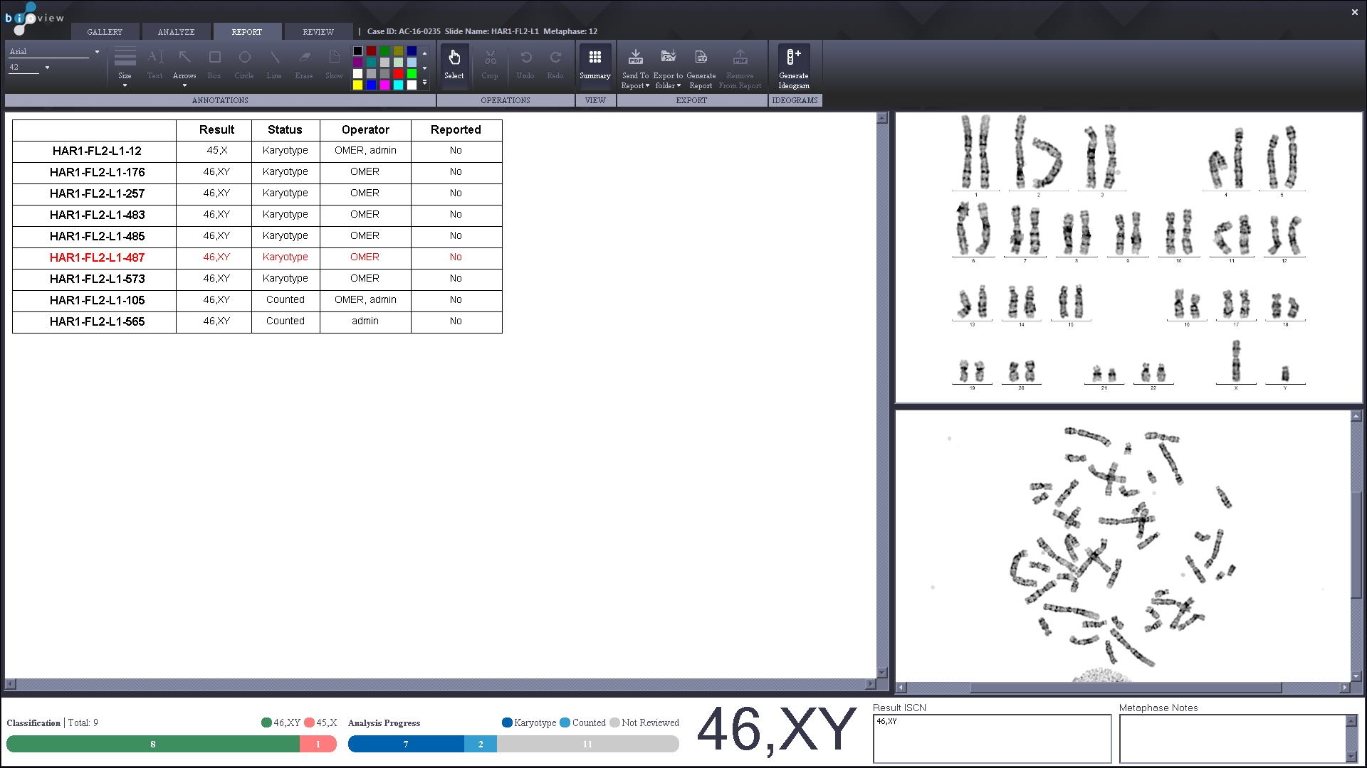 karyotype case summary page