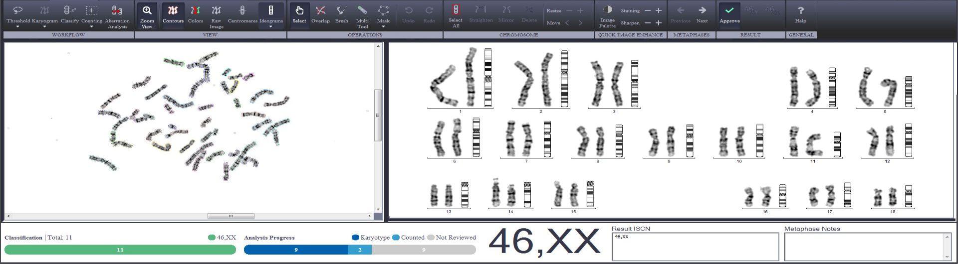 karyotype-main2